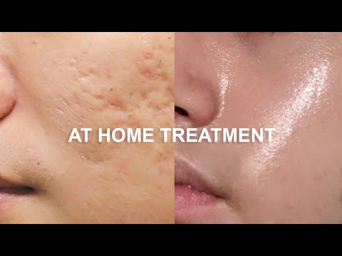How To Fix Face Scars FAST | At Home Quarantine Makeover