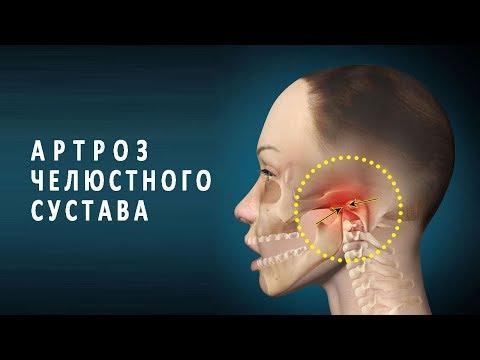 Болит сустав челюсти причины