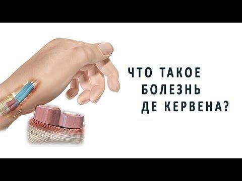 Болит между большим и указательным пальцем
