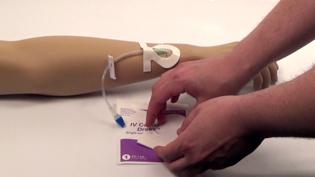 dressing video cu vene varicoase varicoză spitalizare