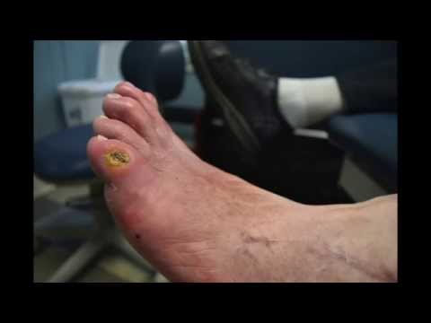 Minimally Invasive Correction of Diabetic foot ulcer with Bone Infection