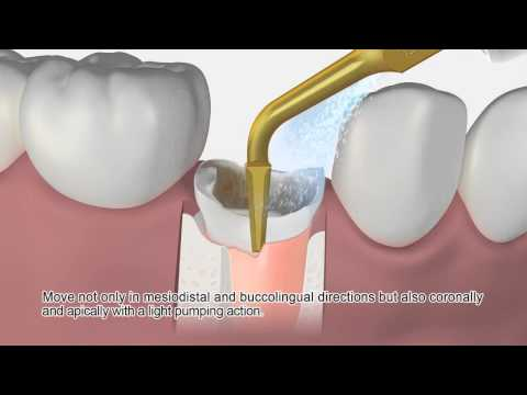 NSK G95 Tip for extractions