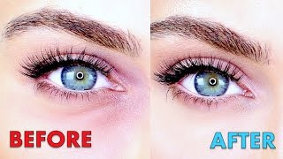 HOW TO GET RID OF DARK CIRCLES !!!! | Ruby Golani