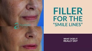 How To Get Rid Of Smile Lines Using Fillers