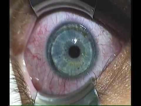tratamento de glaucoma