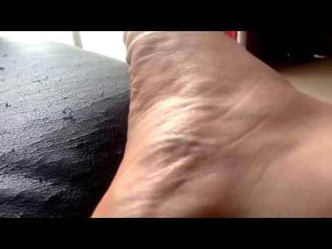 Fasciculation foot leg calf cramp twitch
