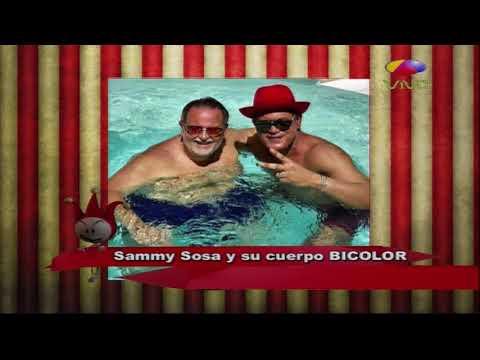 Sammy Sossa Y Su Cuerpo Bicolor, Raul De Molina Lo Entrevista y Habla De La Crema