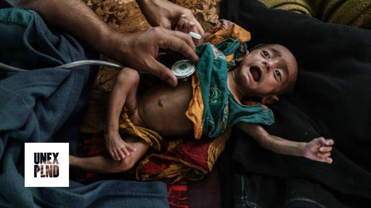 Yaman Alami Krsis Kemanusiaan Terbesar Sejak 1945!