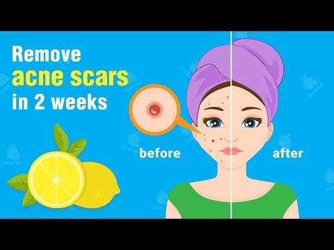 How to Remove Acne/Pimples with Lemon | Heal Acne Scars in 2 Weeks