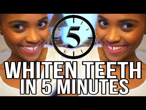 Beauty Tips On How To Whiten Teeth