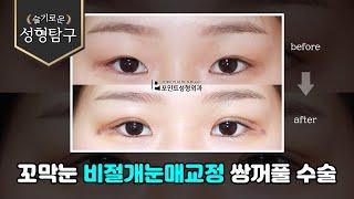 꼬막눈 비절개눈매교정 …