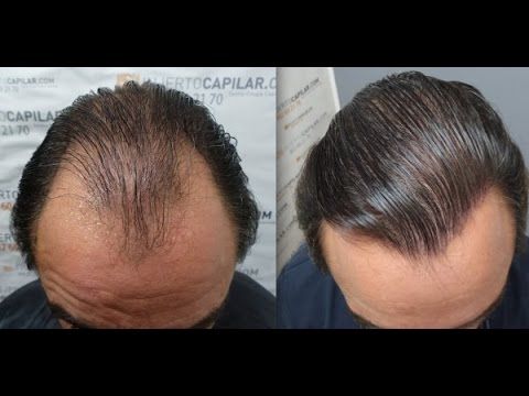 5702 FU'S. Hair Transplant by FUE Technique. Advanced alopecia. Injertocapilar.com. 937/2013