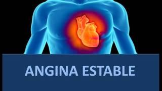angina estable fisiopatologa
