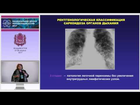 И.А. Соколина - Саркоидоз: Очаговые диссеминации