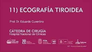 011 Ecografía tiroidea