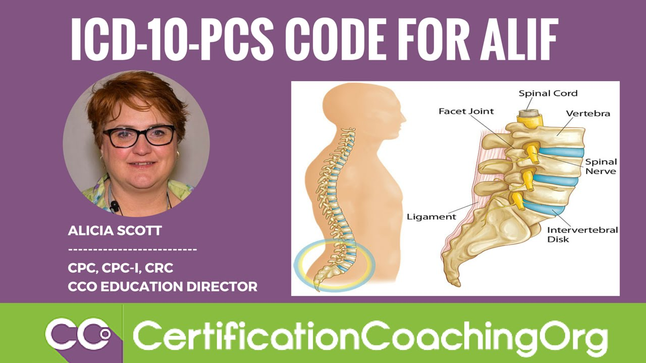 ICD-10-PCS Code for ALIF (Anterior Lumbar Interbody Fusion Procedure)