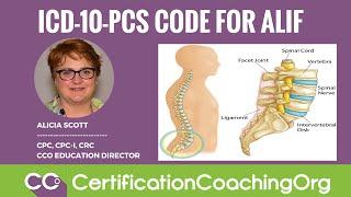 icd 10 pcs code for alif anterior lumbar interbody fusion procedure