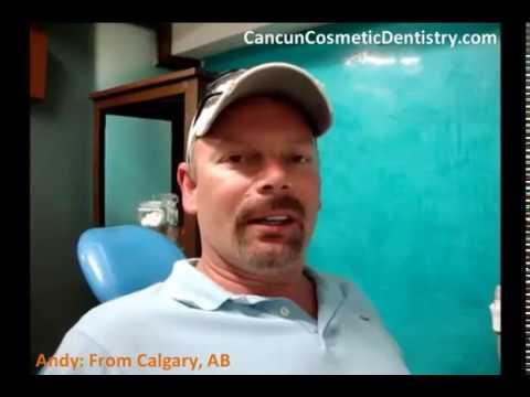 Cancun Dentist Veneers