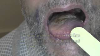 Tongue Cancer After Surgery