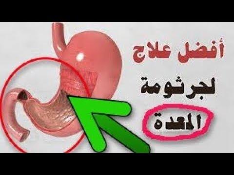 المستكه وطريقه استخدامها لعلاج جرثومه المعده طب الاعشاب Youtube