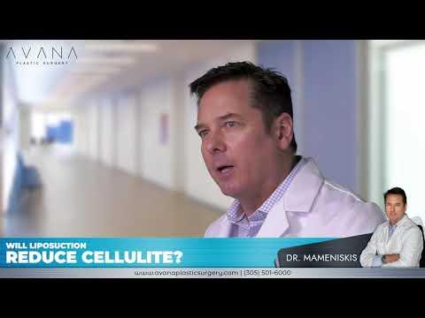 Will liposuction reduce cellulite? - Dr. Mameniskis   Avana Plastic Surgery