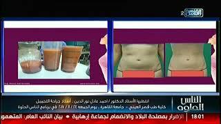 انتظروا الدكتور أحمد عادل نور الدين استاذ جراحة التجميل الجمعة 24 نوفمبر فى الناس الحلوة
