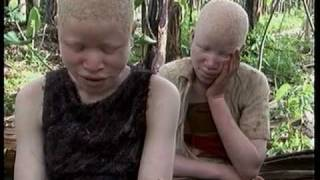 Deadly Hunt: Albinos in Tanzania