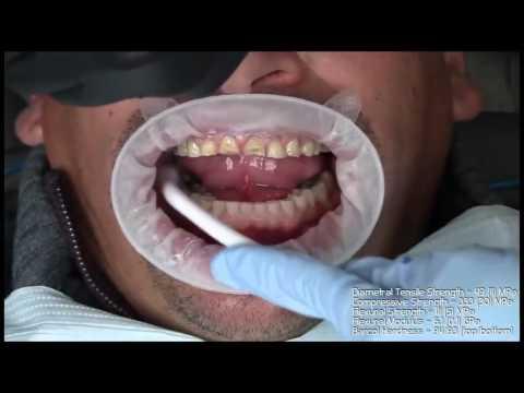 Современное наращивание зубов
