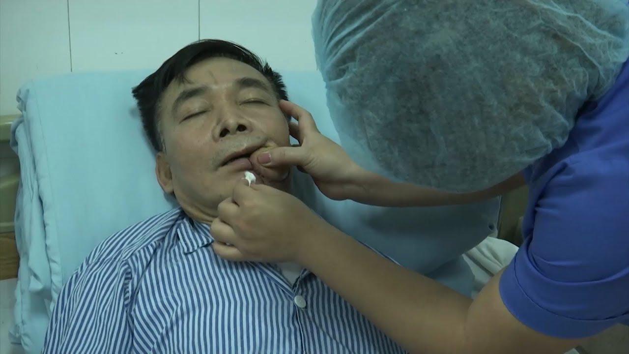 Cảnh báo nguy cơ ung thư khoang miệng