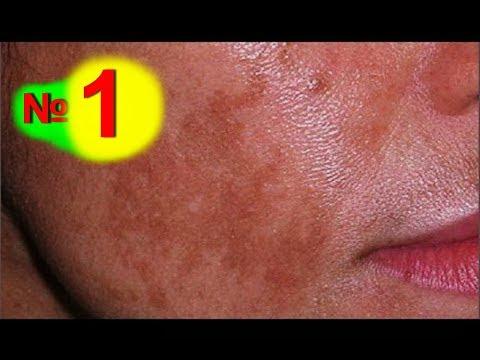 Эффективный способ удаления пигментных пятен на лице при