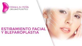 Estiramiento Facial y Blefaroplastia