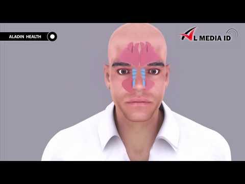 cara-menyembuhkan-penyakit-sinusitis-dengan-obat-herbal-qnc-jelly-gamat