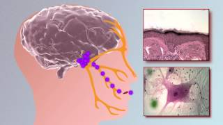 Herpes Cure: How Close Are We?(The video describes the characteristics and research on Herpes Simplex Virus Type 1, Herpes Simplex Virus Type 2 and Cytomegalovirus (CMV), 2015-07-29T11:38:30.000Z)