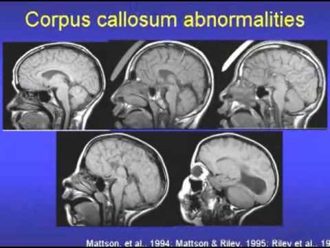Fetal Alcohol Syndrome & Fetal Alcohol Effects Video Part 1