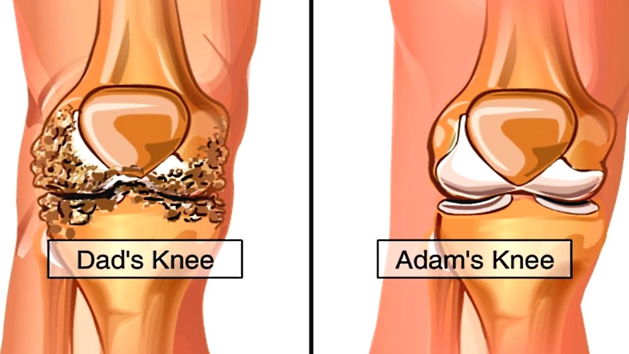 Knee pain diagnosis test - How Osteoarthritis Develops Animation Causes Symptoms Of Osteoarthritis Knee Pain Video Youtube