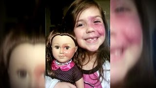 Mom Draws Birthmark On Doll's Face To Match Her Daughter's Port Wine Stain