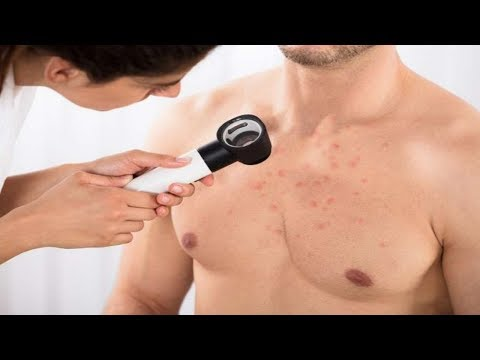 how-to-get-rid-of-chest-acne---treatments-for-pimples-on-chest.