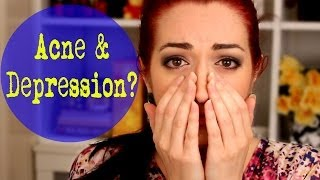 ACNE CAUSES DEPRESSION? How To Get Through It! Thumbnail