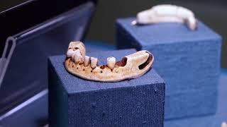 Вставная челюсть Джорджа Вашингтона и инструменты личного дантиста королевы Виктории