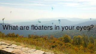 What are floaters in your eyes?
