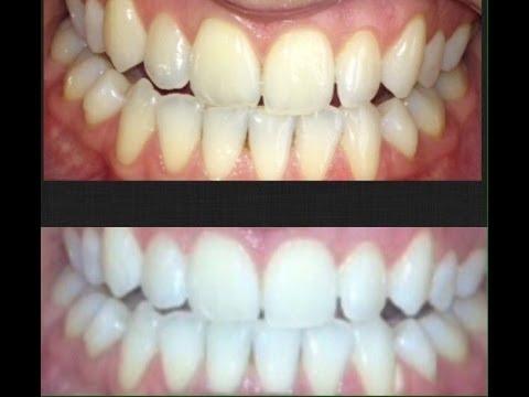 Super white teeth