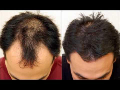 лечение выпадения волос и кожи головы