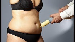 Liposuction - Op.Dr.Fatih Dağdelen