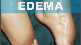 Eliminar los tobillos el edema en como