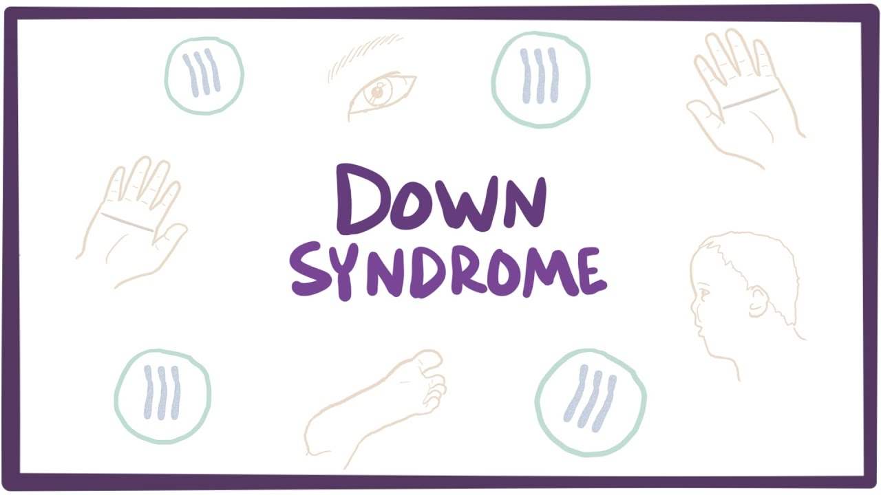 Down syndrome (trisomy 21) – causes, symptoms, diagnosis, & pathology