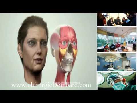 Liting facial en 3D. Chirurgie esthétique spécialiste chirurgien esthétique Bruxelles