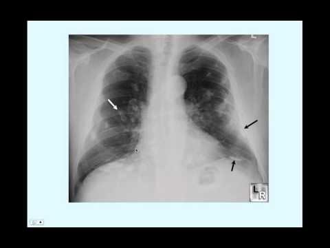 Asbestosis - CRASH! Medical Review Series