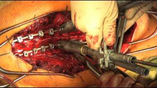 Correction Scoliosis Using Differential Rod Contouring And Direct Verte Rotation