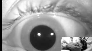 A 7-month-old boy presents with an emaciated appearance and monocular nystagmus, with no associated .