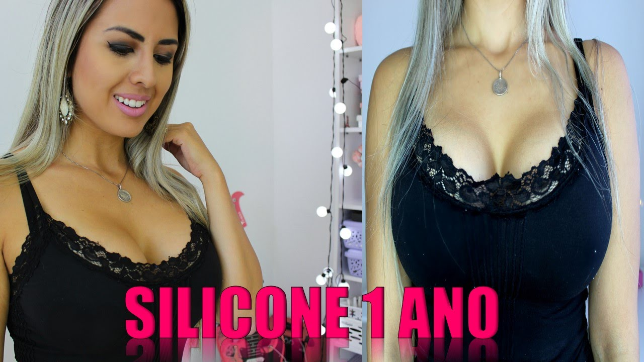 1dfd1befc SILICONE 1 Ano Depois Foto